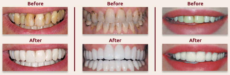 Smile Makeover Dentistry in Sheboygan WI