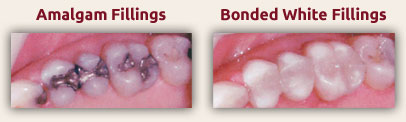 White Dental Fillings - Tooth Colored Fillings
